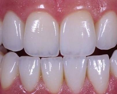 Cirkonio dantys