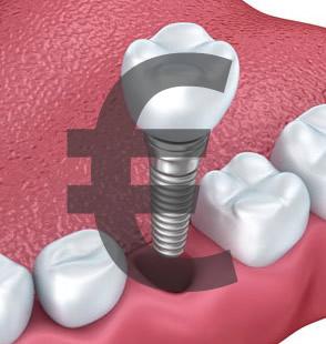 Implantų kaina